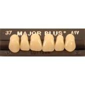Tanden boven Major Plus